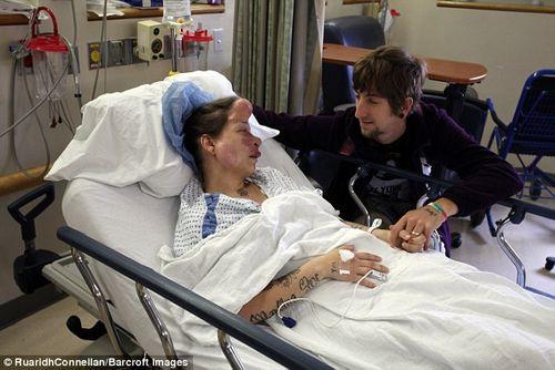 Phẫu thuật loại bỏ khối u chiếm gần hết mặt của người phụ nữ - Ảnh 5