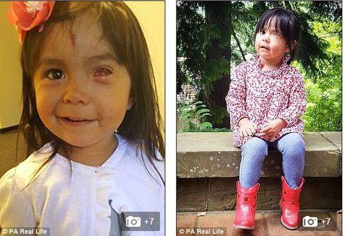 Bé gái sinh ra với khối u lạ chèn hết mắt trái - Ảnh 4