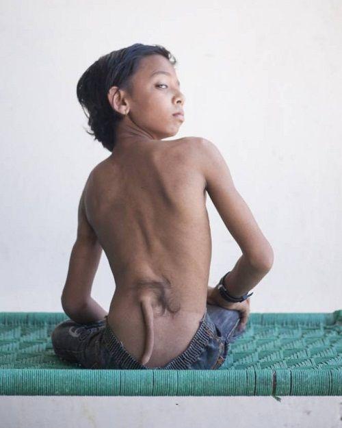 """Bé trai Ấn Độ được tôn xưng là Thần Khỉ vì có """"đuôi"""" mọc sau lưng - Ảnh 1"""