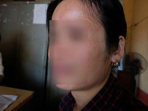 Bé trai 9 tuổi bị bạo hành ở Bắc Giang: Mẹ kế nói gì - Ảnh 1