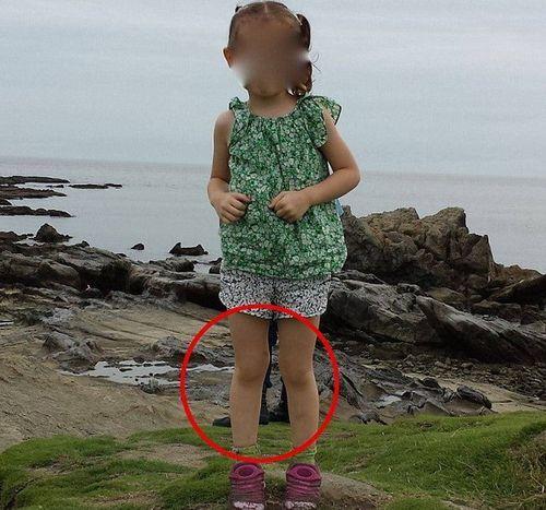 """Tiết lộ sốc từ cha của cô bé trong bức ảnh xuất hiện """"đôi chân ma"""" - Ảnh 1"""
