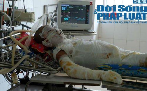 Bé trai 13 tuổi bị điện cao thế giật: Người cha nỗ lực giành lại sự sống cho con - Ảnh 2