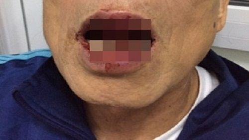 Sức khỏe Tiến sỹ 76 tuổi bị cán bộ sở Ngoại vụ đánh đang ra sao? - Ảnh 1