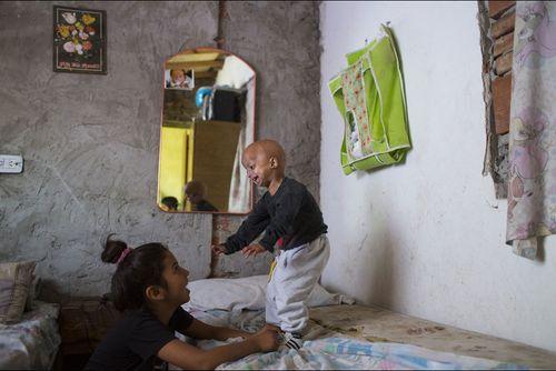 Đáng thương bé trai 4 tuổi mắc kẹt trong thân hình cụ già yếu ớt - Ảnh 1
