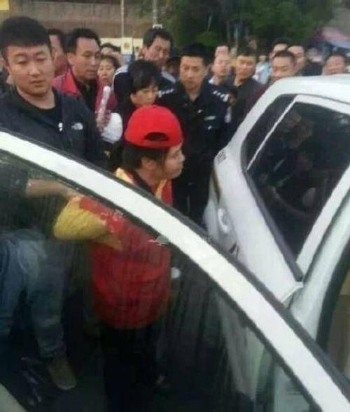 Vượt đèn đỏ, cô gái bị nữ tình nguyện viên dùng búa đập vào đầu - Ảnh 2