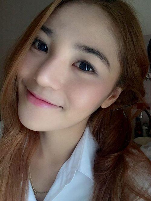 Gương mặt dị dạng đáng sợ của hot girl thẩm mỹ Thái Lan - Ảnh 1