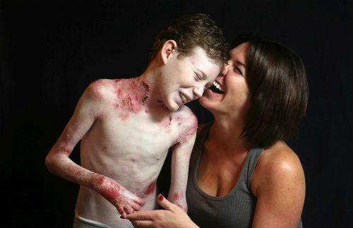 """Cuộc sống trong đau đớn của cậu bé mắc bệnh """"da cánh bướm"""" - Ảnh 2"""