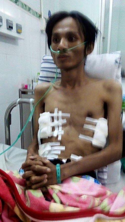 Thân thể ca sĩ trẻ Thái Lan Viên bị tàn phá đáng sợ chỉ sau 1 năm - Ảnh 3