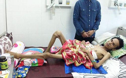 Thân thể ca sĩ trẻ Thái Lan Viên bị tàn phá đáng sợ chỉ sau 1 năm - Ảnh 1