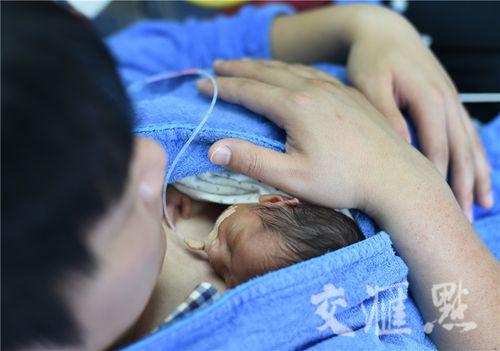 Hình ảnh hai ông bố ôm con sinh non cho bú gây xúc động - Ảnh 2