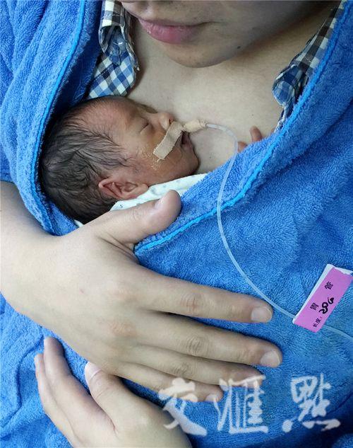 Hình ảnh hai ông bố ôm con sinh non cho bú gây xúc động - Ảnh 4