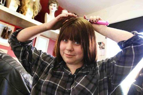 Bé gái 15 tuổi hỏng tủy vì dùng thuốc trị mụn trứng cá quá liều - Ảnh 1