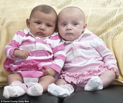 Cặp song sinh khác biệt đến nỗi cha mẹ đẻ cũng phải sốc  - Ảnh 2