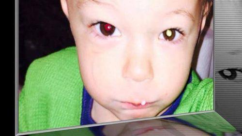 Mẹ phát hiện con nhỏ bị ung thư nhờ chụp ảnh bằng iphone - Ảnh 3