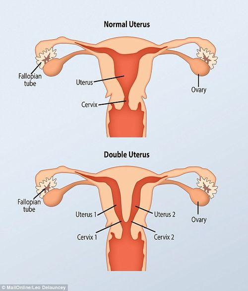 Kỳ lạ người phụ nữ có 2 âm đạo nhưng chỉ có 1 quả thận - Ảnh 2