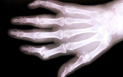 Bệnh loãng xương đã có biện pháp điều trị hiệu quả - Ảnh 1