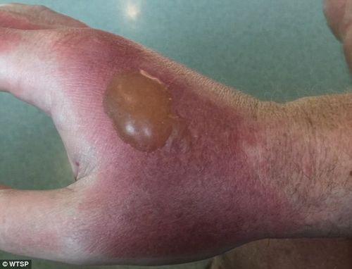 Một người đàn ông bị bỏng cấp độ hai vì nước cốt chanh - Ảnh 1