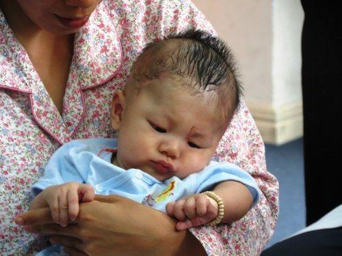 Hình ảnh đáng yêu của bé trai bị đâm xuyên sọ ngày tái khám - Ảnh 4
