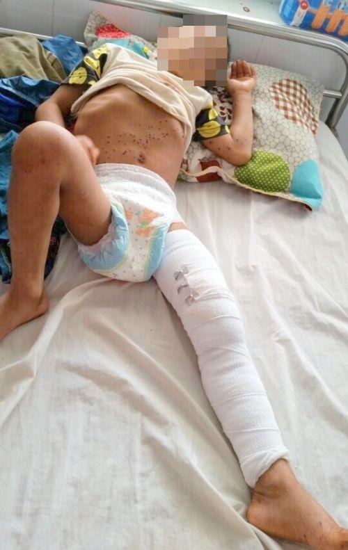 Bé trai bị thương nặng ở đùi sau khi nghịch kíp nổ - Ảnh 1