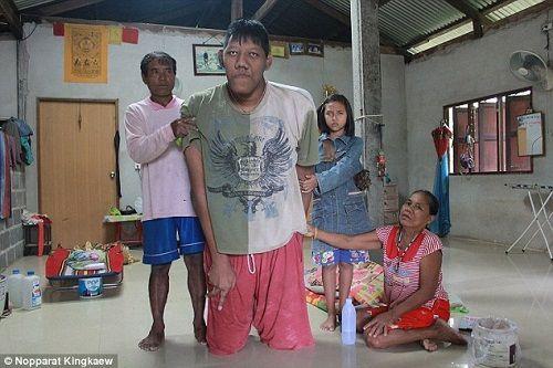 Người đàn ông cao nhất thế giới qua đời ở tuổi 26 - Ảnh 1