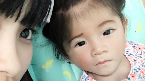Hình ảnh tăng cân đáng yêu của bé gái 14 tháng tuổi nặng 3.5 kg - Ảnh 4