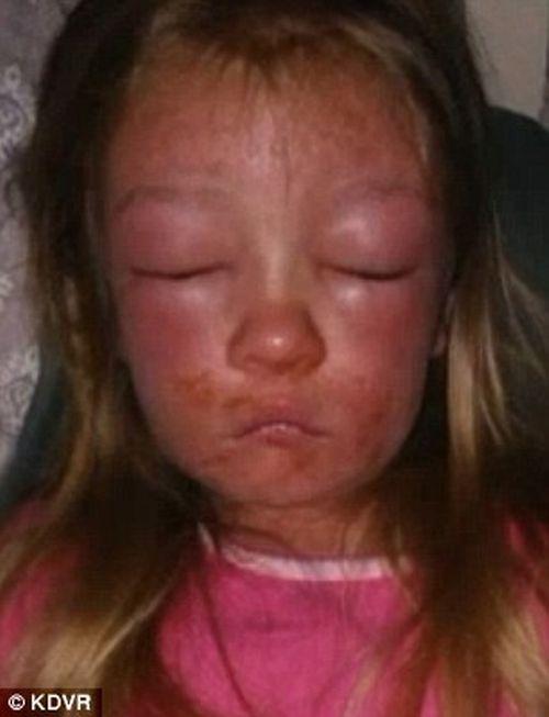Mặt bé gái biến dạng chỉ vì... một vết xước nhỏ trước khi tắm biển - Ảnh 2