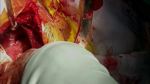 Cứu thành công xe ôm bị dao đâm thấu tim - Ảnh 1