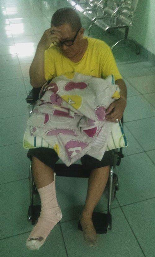 Nghệ sỹ hài Thanh Long Trẻ gặp tai nạn đứt bàn chân phải - Ảnh 1