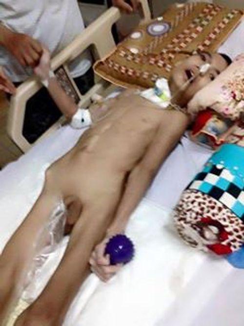 Sự sống mong manh của cậu bé 12 tuổi sau tai nạn giao thông - Ảnh 1