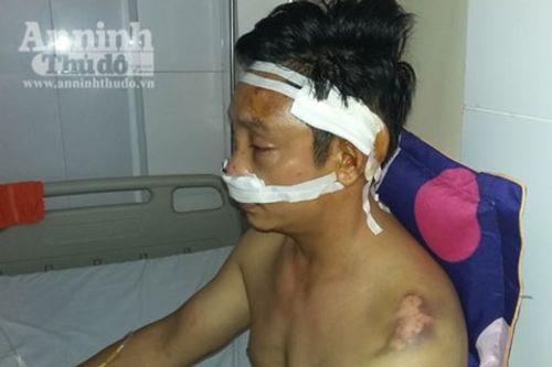 Lời khai của 3 kẻ côn đồ rút súng bắn người ở Nghệ An - Ảnh 2