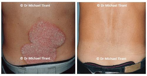 Những điều bạn cần biết về corticoid điều trị bệnh vảy nến - Ảnh 2