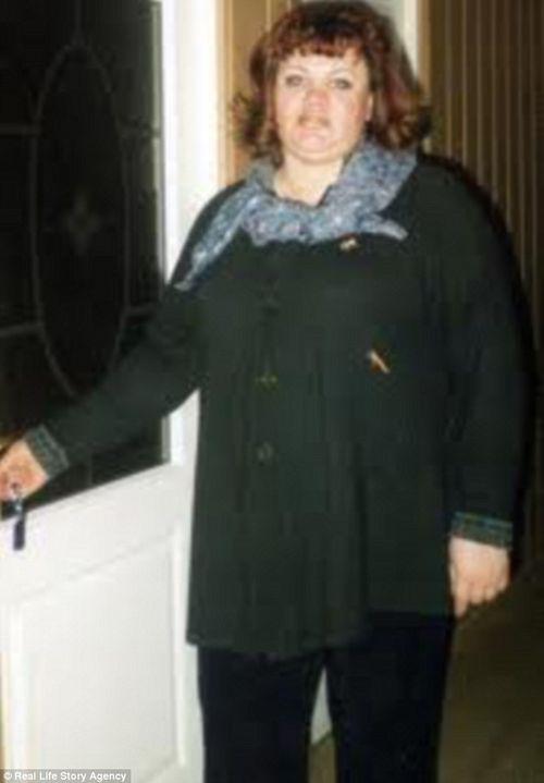Kinh hoàng người phụ nữ giảm gần 60 kg chỉ nhờ cho đỉa hút máu mỗi ngày - Ảnh 4