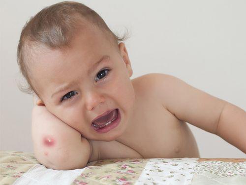 Bài thuốc dân gian chữa mụn nhọt cho trẻ - Ảnh 1