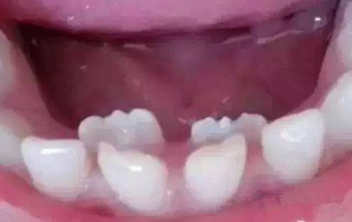 Bé 8 tuổi có tới 3 hàm răng vì mẹ liên tục cho ăn cháo thay cơm - Ảnh 1