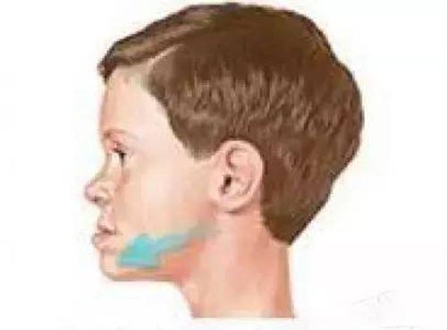 Bé 8 tuổi có tới 3 hàm răng vì mẹ liên tục cho ăn cháo thay cơm - Ảnh 3