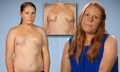 """Hình ảnh bộ ngực """"như chưa dậy thì"""" của bà mẹ bị phẫu thuật hỏng - Ảnh 3"""