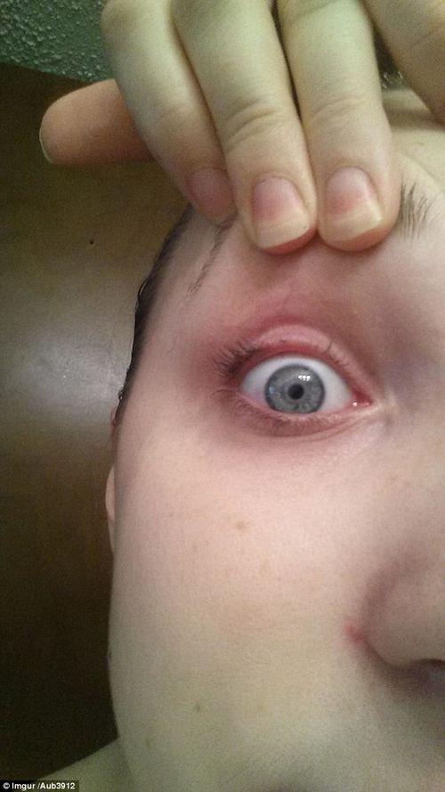 """Sự cố hy hữu: """"Trọc"""" mi mắt vì hắt hơi trong khi kẹp mí - Ảnh 1"""