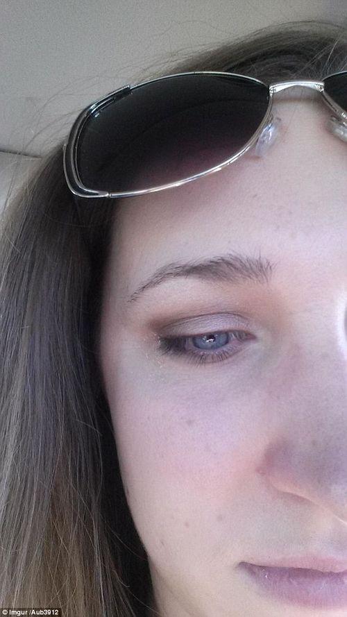 """Sự cố hy hữu: """"Trọc"""" mi mắt vì hắt hơi trong khi kẹp mí - Ảnh 3"""