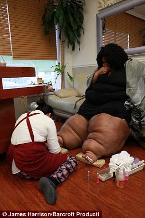 """Kỳ lạ người phụ nữ có """"đôi chân voi"""" phát triển không ngừng - Ảnh 2"""