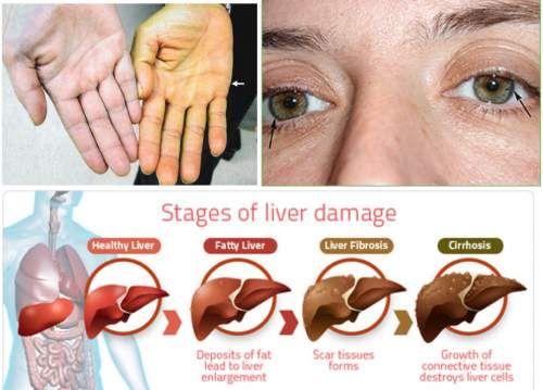 Những dấu hiệu chứng tỏ bạn đang gặp vấn đề về gan - Ảnh 2
