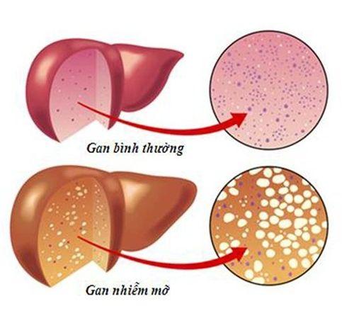 Những dấu hiệu chứng tỏ bạn đang gặp vấn đề về gan - Ảnh 1