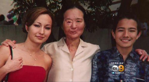 Bà mẹ 12 năm mang khẩu trang giấu gương mặt đáng sợ để được bên con - Ảnh 5