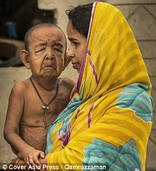 Cậu bé 4 tuổi mang ngoại hình ông lão 80 vì mắc bệnh lạ - Ảnh 3