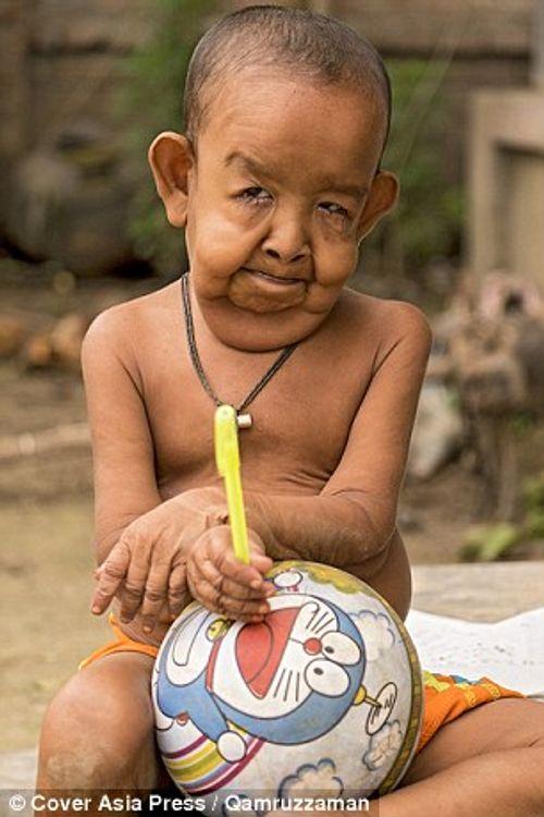 Cậu bé 4 tuổi mang ngoại hình ông lão 80 vì mắc bệnh lạ - Ảnh 4