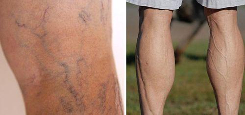 Hàng triệu người Việt mắc bệnh ở chân mà không biết - Ảnh 1