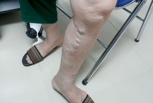 Hàng triệu người Việt mắc bệnh ở chân mà không biết - Ảnh 2