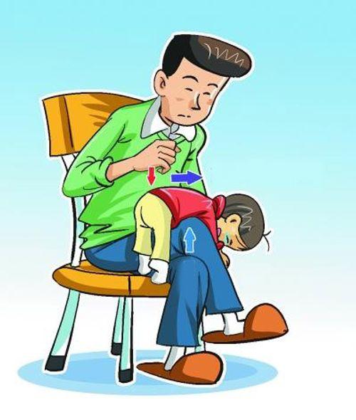 Cách sơ cứu khi trẻ bị hóc dị vật đường thở - Ảnh 1