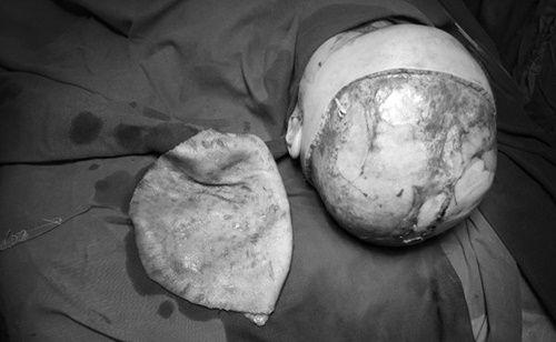 Phẫu thuật thành công nối da đầu cho cháu nhỏ 2 tuổi bị tai nạn - Ảnh 1