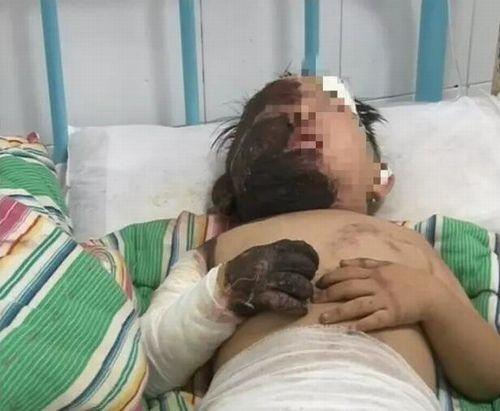 Người lớn lơ là khiến bé trai 3 tuổi bị ngã vào chảo dầu sôi - Ảnh 1