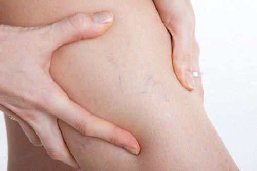 Suýt phải cưa chân vì dại dột mặc quần skinny quá chật - Ảnh 4
